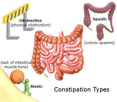 Evaluation of Severe Chronic Constipation